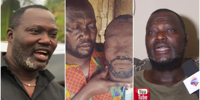 """No Kumawood actor or actress contributed even a pesewa to Bernard Nyarko when he was sick""- Elder brother reveals. (video) 1"