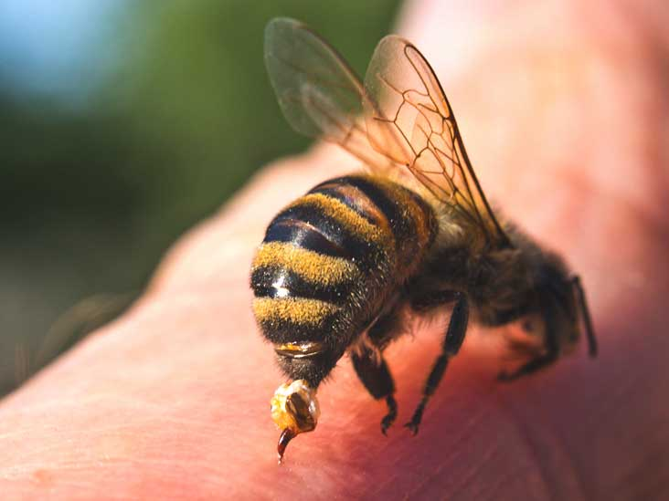 Bee sting on the pen!s can permanently enlarge it – New study reveals 2