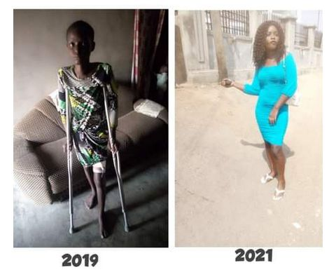 For 1 and half year on the sick bed My boyfriend never visited - Lady shares story (Photos) 3