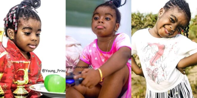 Pictures of Princess, the hairiest Kid in Africa (photos) 1