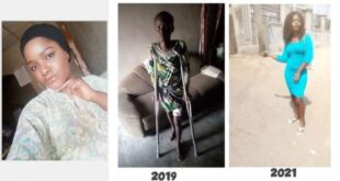 For 1 and half year on the sick bed My boyfriend never visited - Lady shares story (Photos) 17