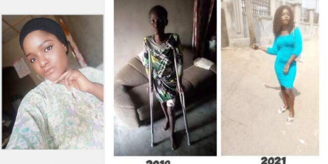 For 1 and half year on the sick bed My boyfriend never visited - Lady shares story (Photos) 1