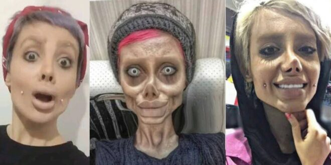 A beautiful woman turns into a zombie after undergoing surgery to change her looks. 1