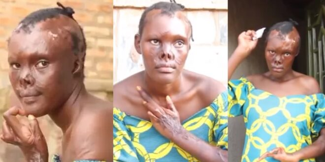 """I wanted to end it all""- Lady narrates how life has been worse for her after she got burnt in a fire outbreak 1"