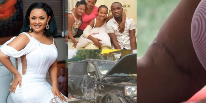 'My broken arms was replaced with a metal'- Nana Ama Mcbrown shares her accident story (video) 1