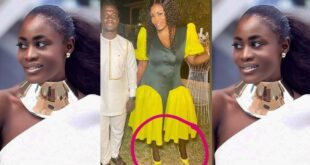 Nana Akua Addo blasted for bleaching her face and forgetting her legs 16