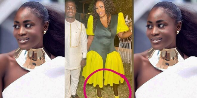 Nana Akua Addo blasted for bleaching her face and forgetting her legs 1