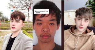 Young Man Changes His Looks Through Plastic Surgery After Not Getting A Job Because Of His Appearance - Photos 20