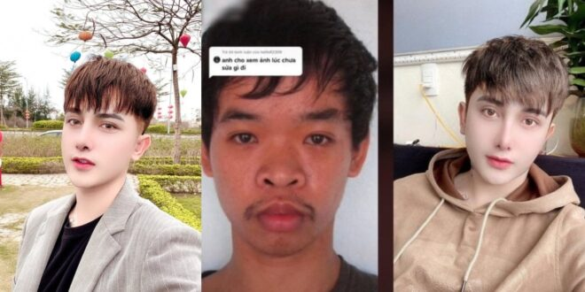 Young Man Changes His Looks Through Plastic Surgery After Not Getting A Job Because Of His Appearance - Photos 1