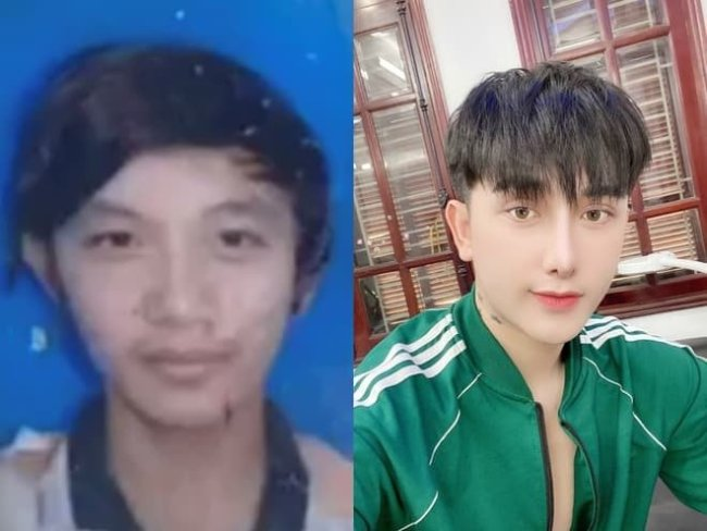 Young Man Changes His Looks Through Plastic Surgery After Not Getting A Job Because Of His Appearance - Photos