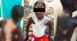 #Kasoa: 10-year-old boy who was set on fire finally speaks 66