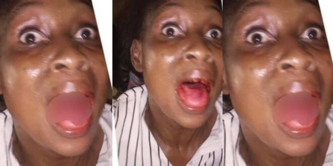 Lady begs court to release abusive Husband after she lost her front teeth through a blow from her husband 1