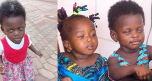 """My daughter is not a witch neither is she a toy""- Mother of the blue-eyed girl in northern region speaks 8"
