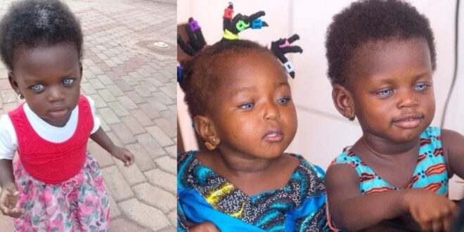 """""""My daughter is not a witch neither is she a toy""""- Mother of the blue-eyed girl in northern region speaks 1"""