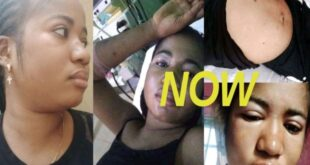 Pretty lady gets instant Stroke after she insulted and disgraced a pastor on Facebook. 14