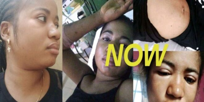 Pretty lady gets instant Stroke after she insulted and disgraced a pastor on Facebook. 1