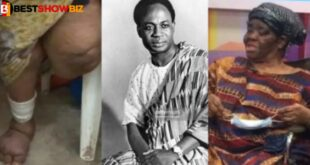The woman who lost her leg in Nkrumah's bomb attack dies 11