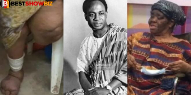 The woman who lost her leg in Nkrumah's bomb attack dies 1